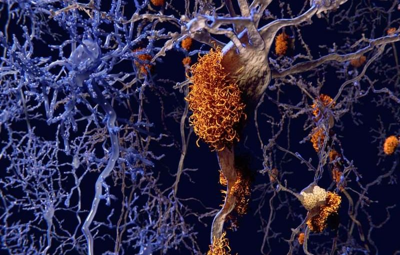 Pathology and nuns' brains; improving outcomes for Alzheimer's patients